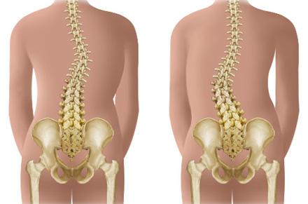 Retete pentru wangi pentru dureri articulare