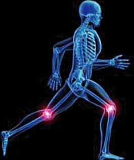 Artrita reumatoida genunchi poze