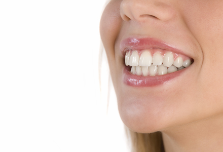 Solutii de albire a dintilor
