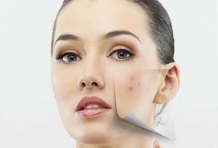 masca acnee