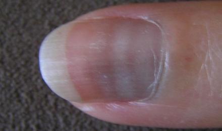 aspectul unghiilor