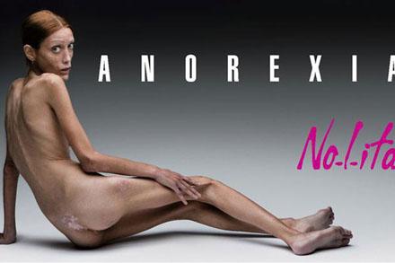 Anorexie nervoasă