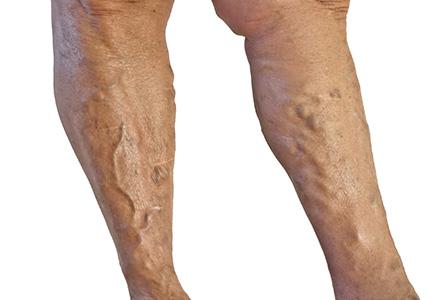 remedii pentru vene sparte pe picioare