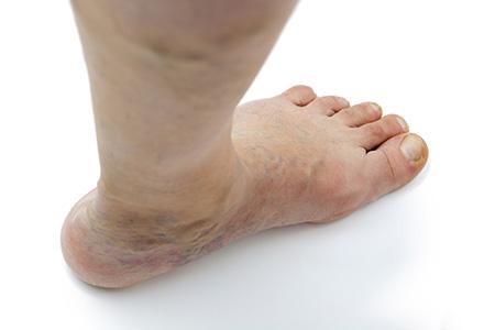umflarea venelor mâncărime la picioare
