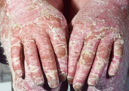 dermatita in captivity