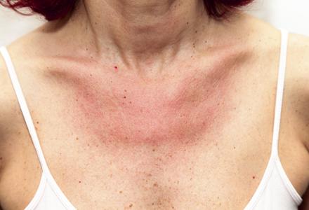 Piele atopica dermatita atopica for Allergie chlore piscine symptomes
