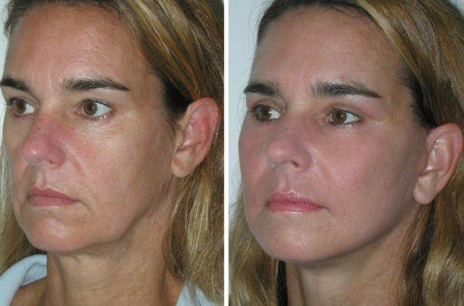 Lifting facial cu fire bio-resorbabile