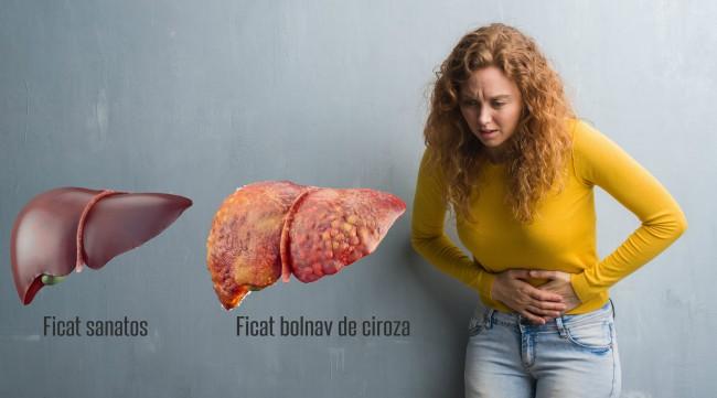 Primele simptome ale cirozei hepatice