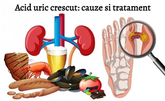 Lista alimentelor cu acid uric mare (purine) și a celor fără acid uric