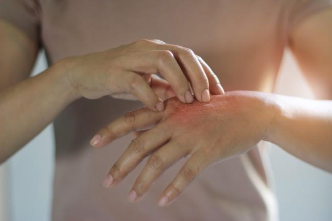 Bump pe brațul sub piele, tratamentul cu mărgele și sigilii