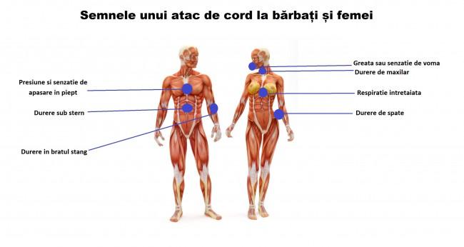 atac de cord și erecție