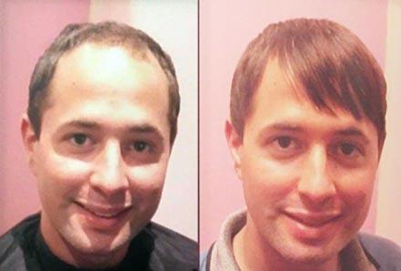 Extensii De Par Speciale Pentru Cei Cu Alopecie