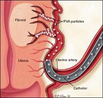 embolizare uterina
