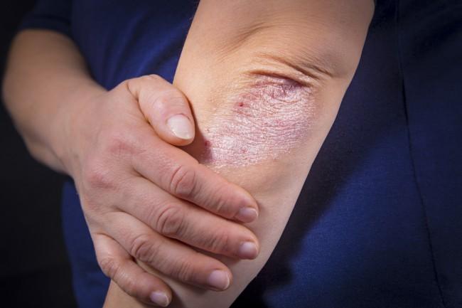 dermatita atopica la bebelusi tratament sinuzita cronica