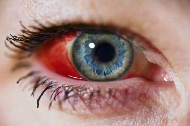 Curent la ochi tratament
