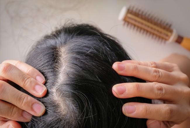 Pielea capului iritata