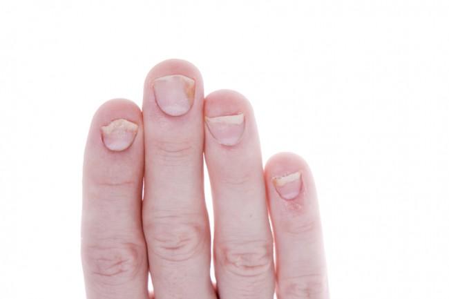 Tratament unghii exfoliate