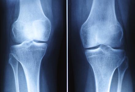 radiografie genunchi
