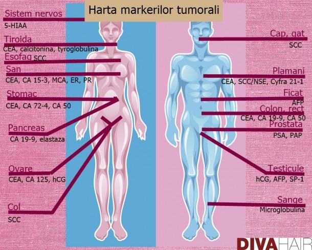 cancer ovarian markeri tumorali)