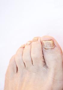 ciuperca unghie picior tratament
