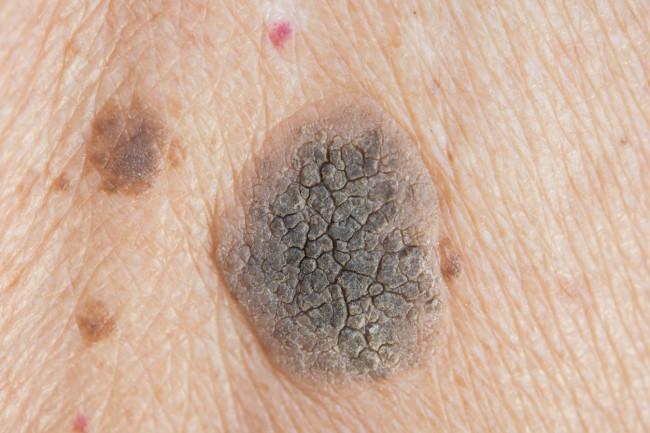 tumorile benigne provoacă pierderea în greutate