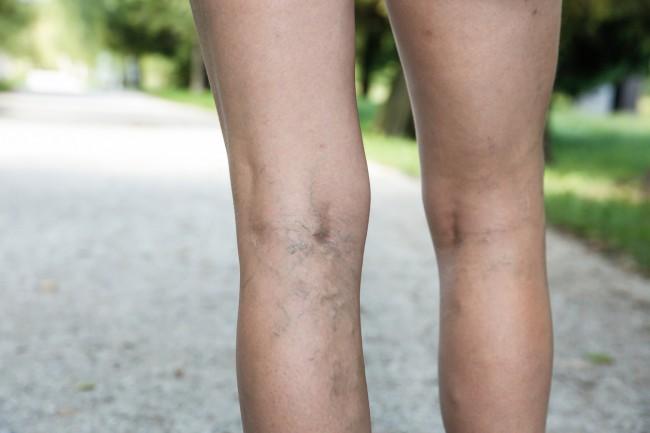 vene vizibile brusc pe picioare