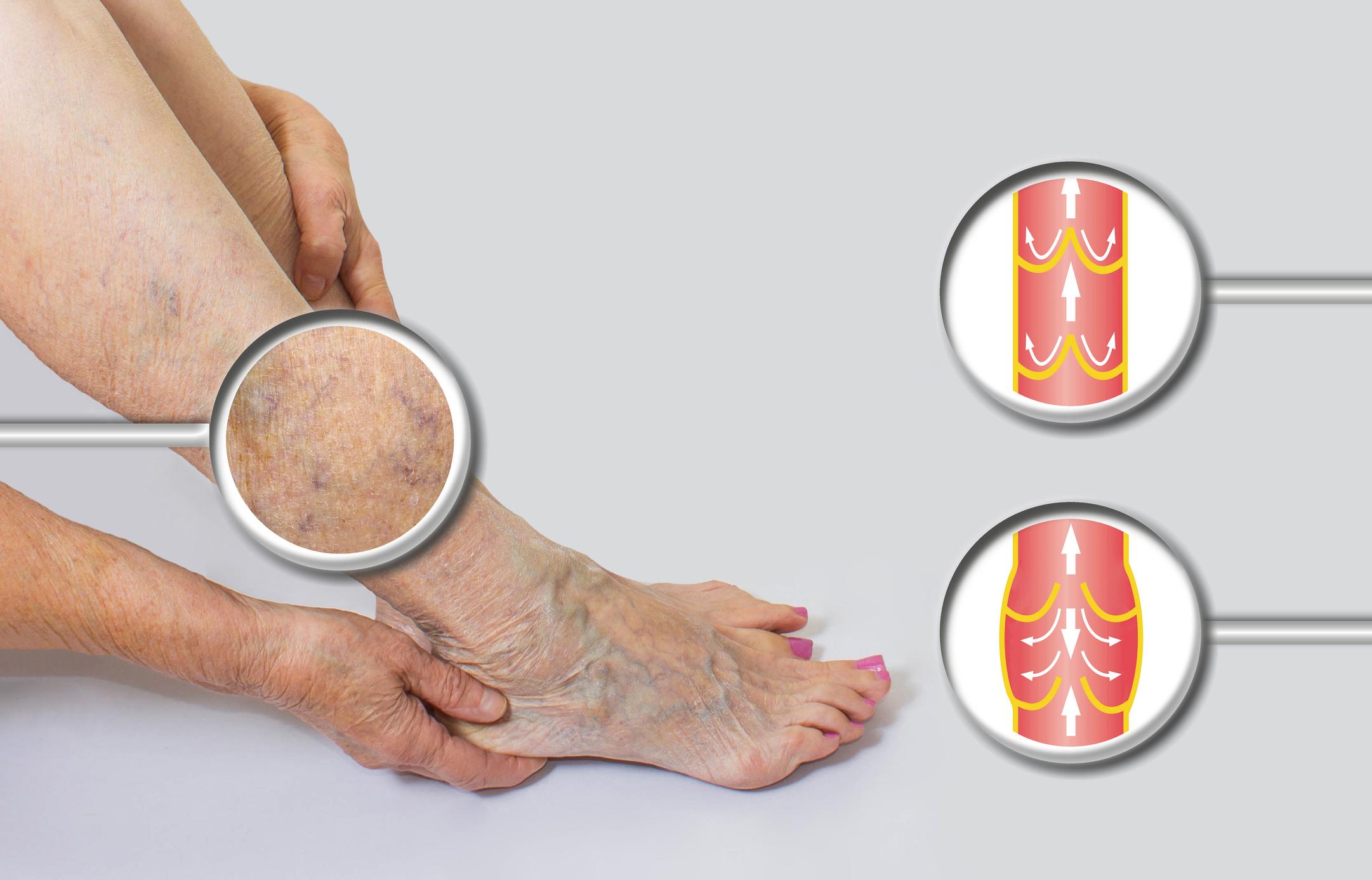 prevenirea exercițiilor varicoase varicoase concepție și varicoză de pelvis mici