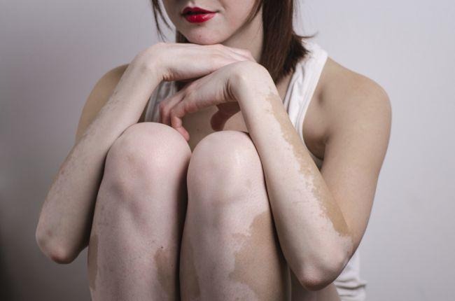 tratament vitiligo 2016