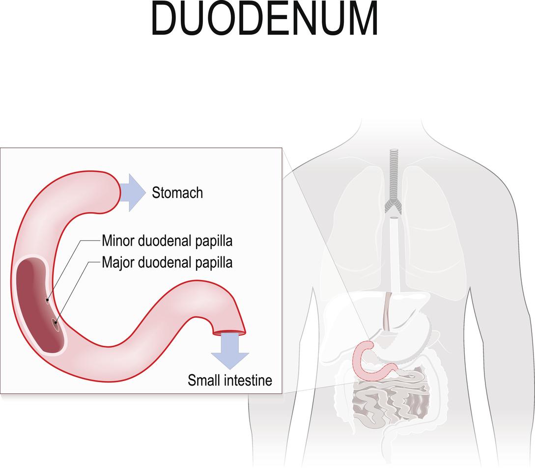 pierderea în greutate provoacă ulcer duodenal
