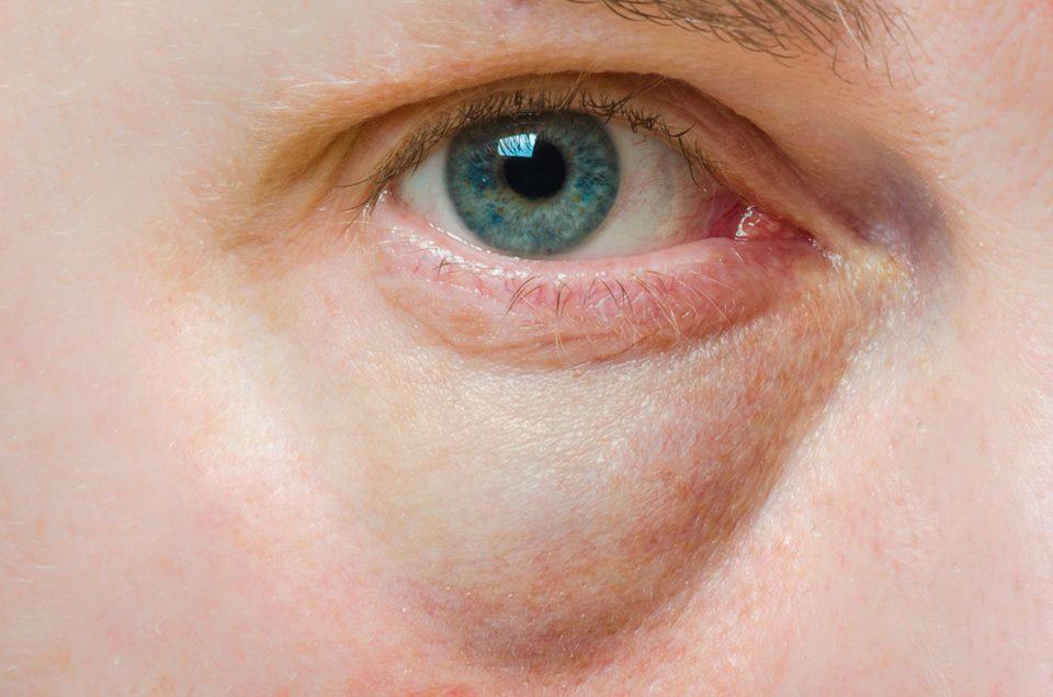 Vasele varicoase ale ochilor: cum să recunoașteți simptomele periculoase - Tratament