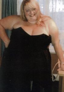 Obezitatea de grad 3 sau obezitatea morbida