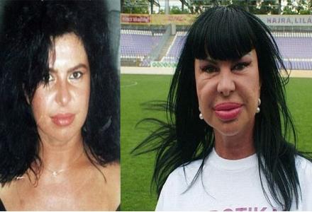 operatii estetice Maria Geronazzo