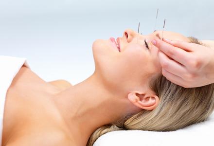 sedinta de acupunctura