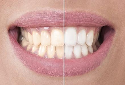 albirea dintilor cu bicarbonat