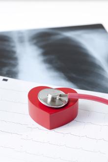 anevrismul aortei toracice