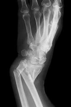 artropatie