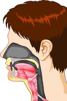 laringita