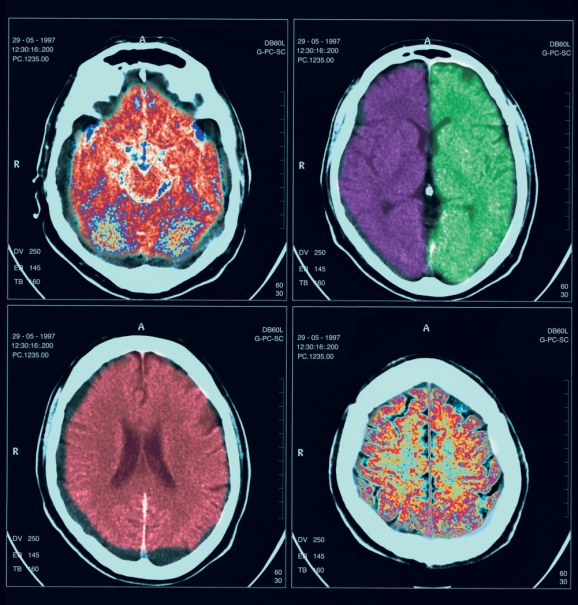 craniosinostoza