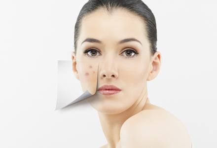 Caracteristici ten acneic