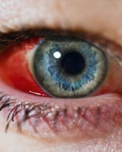 umflarea sub ochii ochilor varicoși