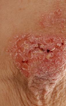 boli de piele poze