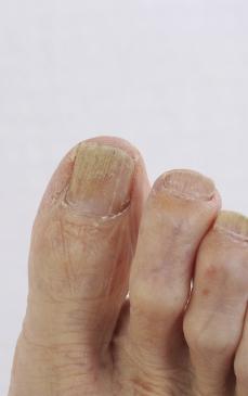 boli de unghii la picioare