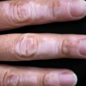 cancer de piele pete albe manifestări clinice ale difilobotriazei