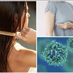 Semnul din păr care anunță cancerul de sân