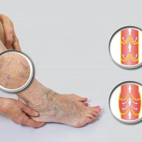 tratament pentru tratament recenzii varicose nou în tratamentul venelor varicoase și tromboflebită