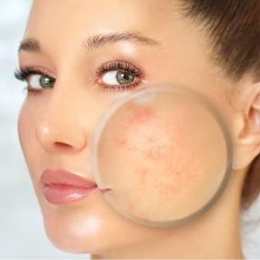 Obiceiurile nocive de care nu ești conștientă și care îți strică pielea iremediabil