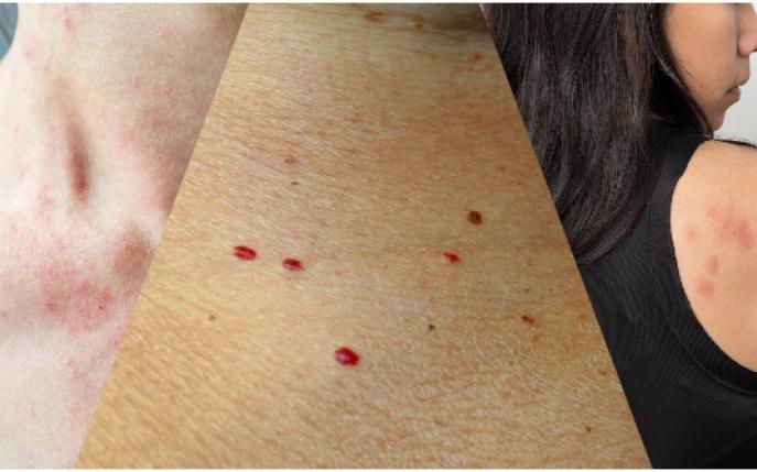 negi rosii pe piele human papillomavirus vaccine gardasil