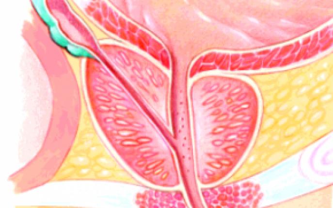 adenom de prostata cauze si tratament