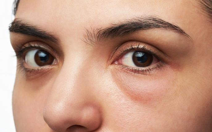 Piele uscata in jurul ochilor la copii